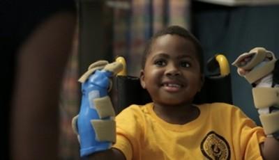 transplant bilateral copii
