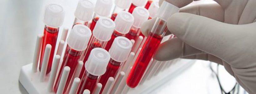 analize de sange
