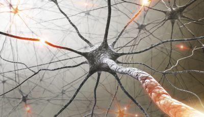 scleroza-multipla