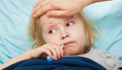 Vaccin-ROR-epidemie-rujeola-1170x644